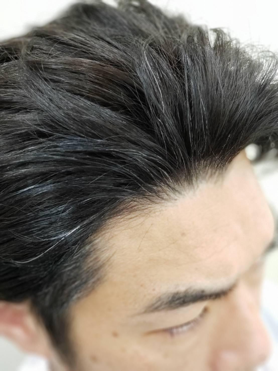 自身の生え際を使って、かつらの毛と馴染ませます。 自身の生え際を使って、かつらの毛と馴染ませます。 髪色、長さの条件が整えば、最も自然に仕上がります。