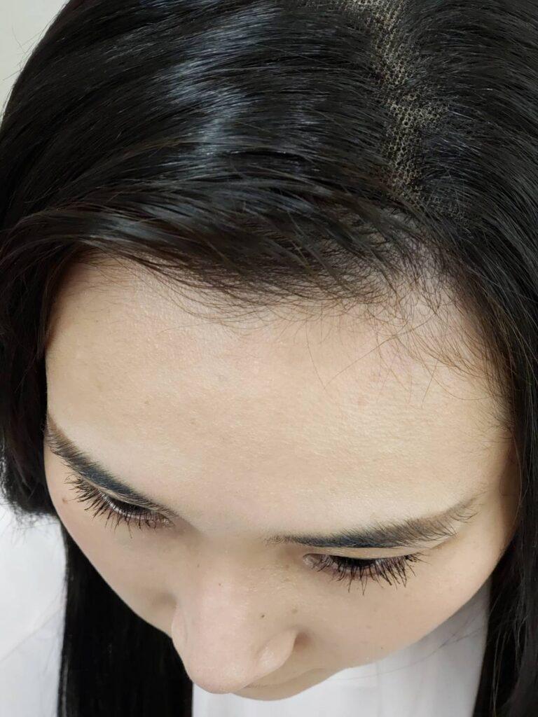 自身の生え際を使って、かつらの毛と馴染ませます。自身の生え際を使って、かつらの毛と馴染ませます。 髪色、長さの条件が整えば、最も自然に仕上がります。