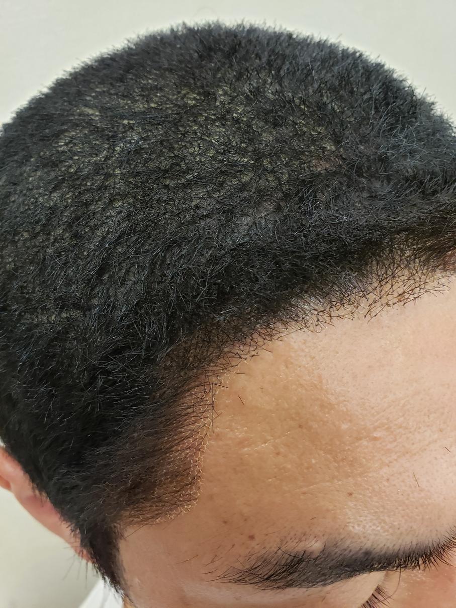 トップは生地に植毛して、毛が立つようにしてあります。 フェイスラインはチュール仕様になっています。